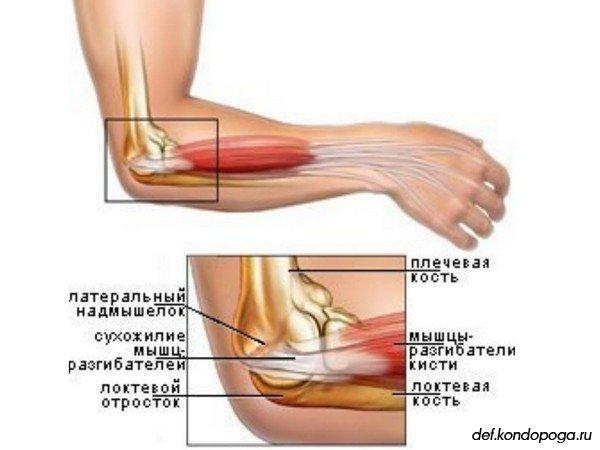почему болит локтевой сустав после физической нагрузки